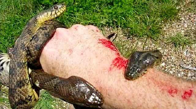 Что необходимо делать в первую очередь, если Вас укусила ядовитая змея